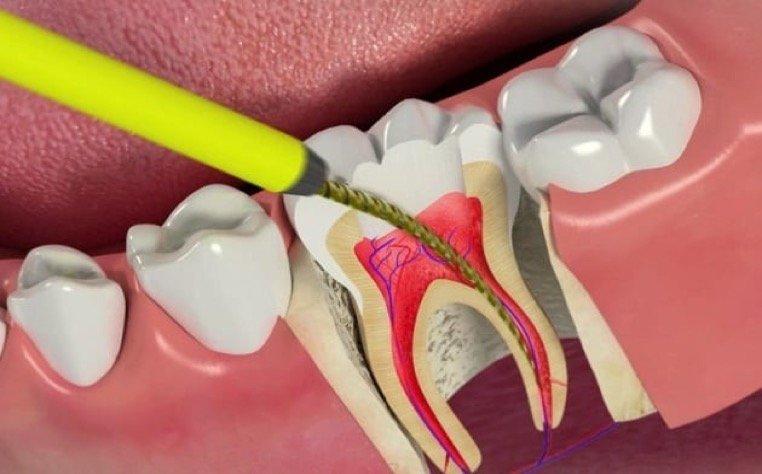 Devitalisation des dents