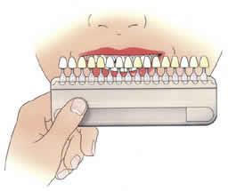 4. Kleur bepalen Als de kroon of brug vóór in de mond staat, heeft deze meestal een tandkleurige buitenlaag. Samen met uw tandarts zoekt u een geschikte kleur uit. 5. Noodkroonvoorziening Voor uw comfort en ter bescherming van de afgeslepen tand of kies, maakt de tandarts een noodvoorziening (tijdelijke kroon). Eet er geen harde of kleverige producten mee. De tijdelijke kroon is daar niet op berekend.