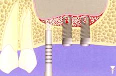 Greffe osseuse (Sinus lift)