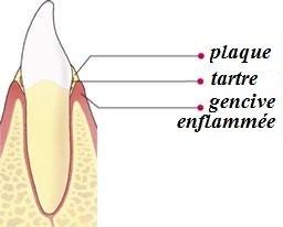 Inflammation des gencives